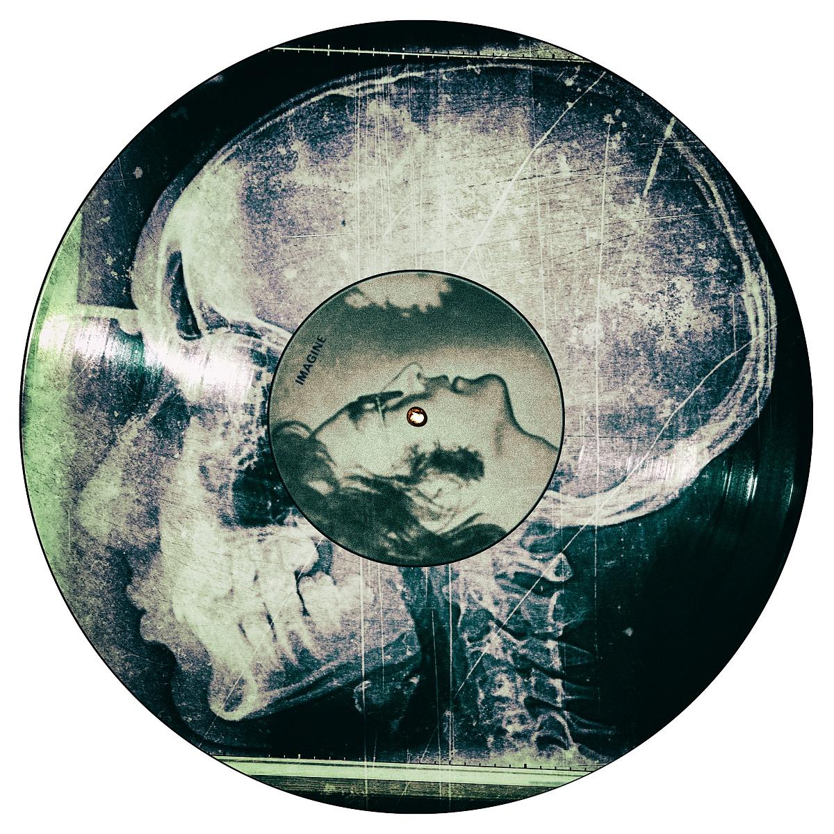 Rx Cranio su copertina LP Imagine, John Lennon